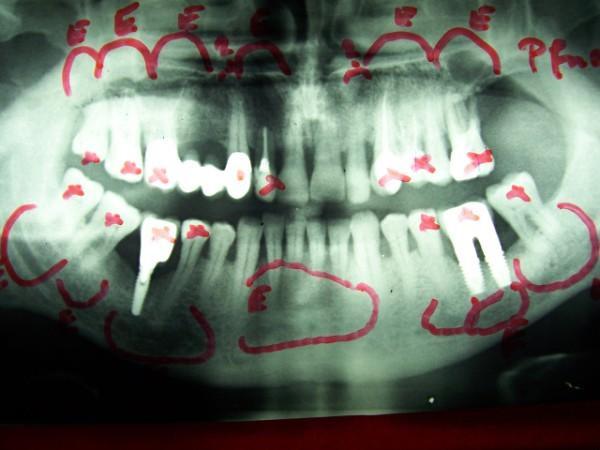 vereiterter zahn was hilft
